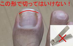 巻き爪を避ける爪の切り方