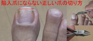 陥入爪にならない正しい爪の切り方