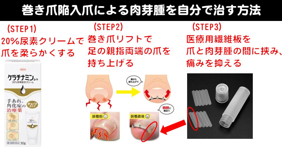 巻き爪肉芽陥入爪を自分で治す方法