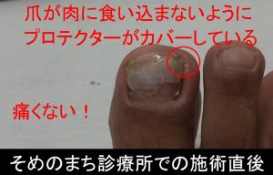 足の親指横の肉芽腫 治療直後