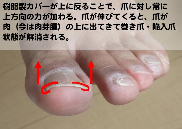 巻き爪・陥入爪のガター法治療原理