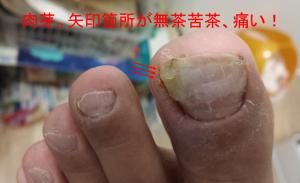足の親指横の肉芽腫 とにかく痛い
