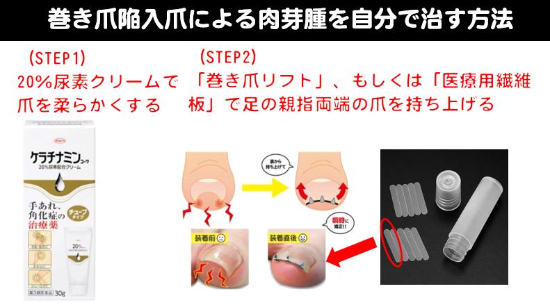 巻き爪陥入爪による肉芽腫を自分で治す方法
