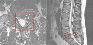 腰椎椎間板ヘルニア(4番、5番)
