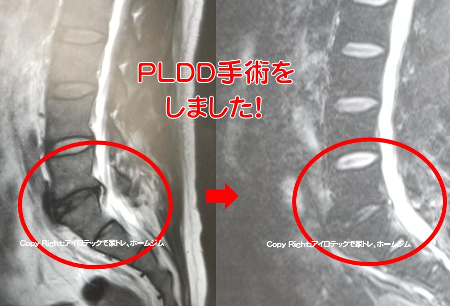 腰椎椎間板ヘルニア レーザー手術(PLDD手術)体験談